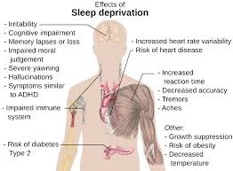 Sleep Deprivation and the affect it has on high school students.